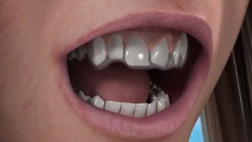 Invisalign Clear Braces Bayswater Hyde Park Dental Clinic
